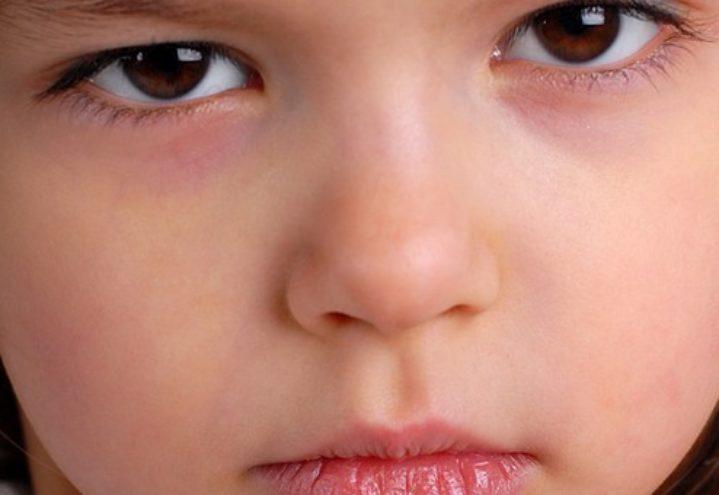 Beskrivelse og vurdering av tiltaket Tidlig innsats for barn i risiko (TIBIR) – Foreldre-gruppeintervensjonen